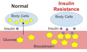 insulin_resistance